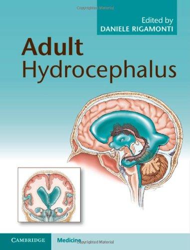 Adult Hydrocephalus 51RGjziSXkL