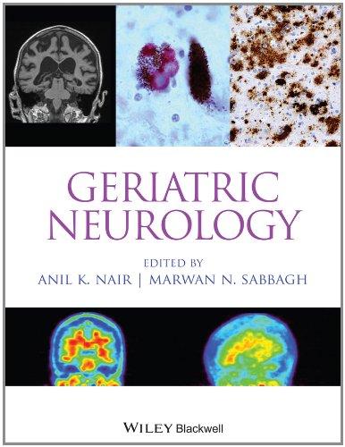 Geriatric Neurology 51WQV%2BM3pLL