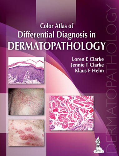 Color Atlas of Differential Diagnosis in Dermatopathology  51iZITA4qoL