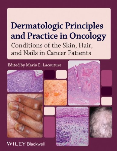 Dermatologic Principles and Practice in Oncology: Conditions of the Skin, Hair, and Nails in Cancer Patients 51jlkoWJiKL