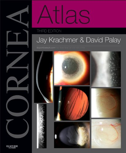 Cornea Atlas: Expert Consult - Online and Print, 3e  51yIS0IFJgL