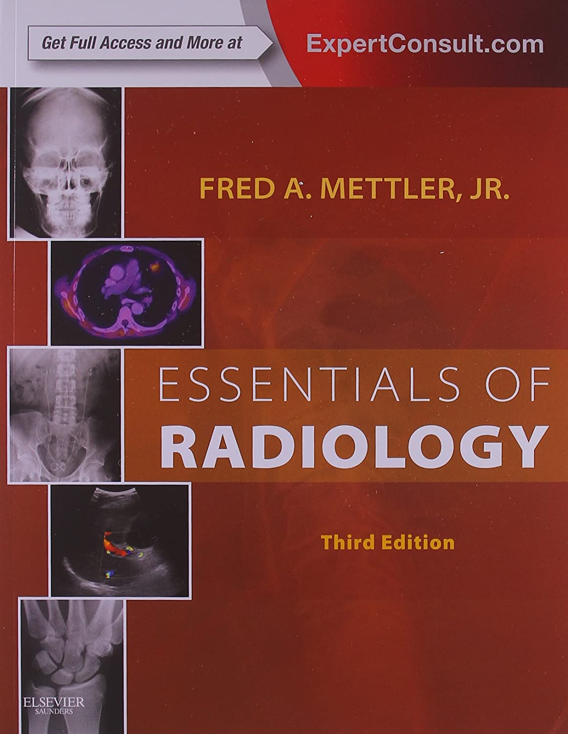 Essentials of Radiology: Expert Consult - Online and Print, 3e (Mettler, Essentials of Radiology) 71O8TmCr-gL._SL1500_