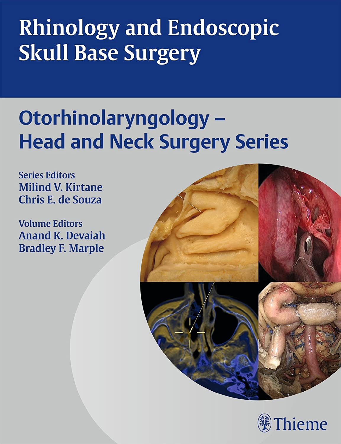 Rhinology and Endoscopic Skull Base Surgery 812gHdVfljL._SL1500_