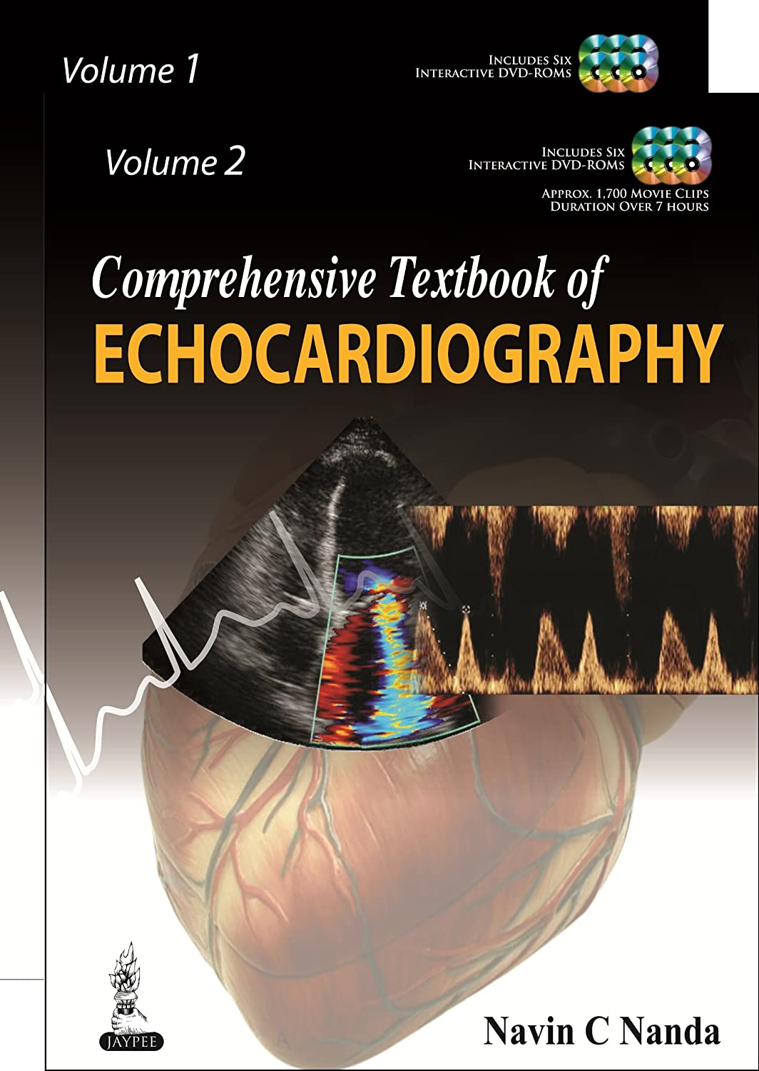 Comprehensive Textbook of Echocardiography (Vol. 1 and Vol. 2) 813XFMfc2ZL._SL1500_