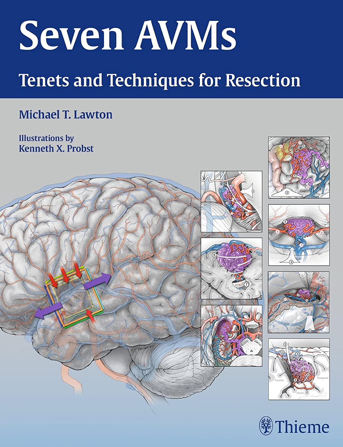 Seven AVMs: Tenets and Techniques for Resection 81MAjTJ2U%2BL._SL1500_