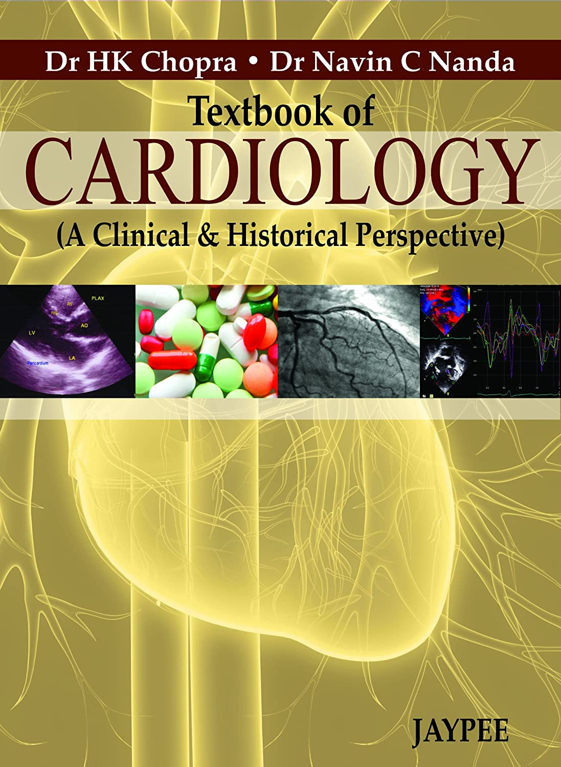 Textbook of Cardiology: A Clinical and Historical Perspective 91iKhKOxNYL._SL1500_