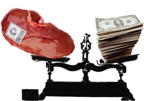 «Vendo riñón en perfecto estado. Necesito el dinero porque no tengo ni paro ni nada» Money-for-kidney-1