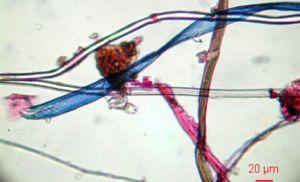 """Basura de plásticos, microplásticos: """"amenaza tóxica para la vida"""" marina. [vídeo] - Página 2 1451472277_280896_1451473401_sumario_grande"""