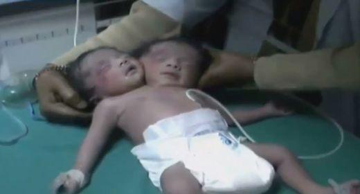 Tercer nacimiento de bebé con dos cabezas en siete días Dziecko_z_dwiema_glowami