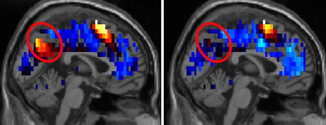 Nuevos hallazgos sobre el funcionamiento del cerebro de las personas con autismo (EL MUNDO) 14175506136166