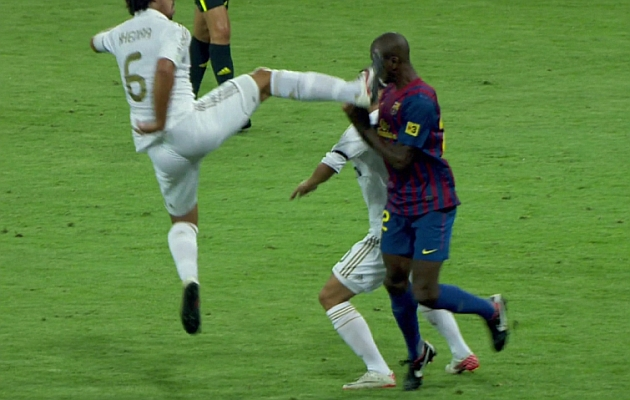How do you not get sent off for this? 1313354449_extras_noticia_foton_7_1