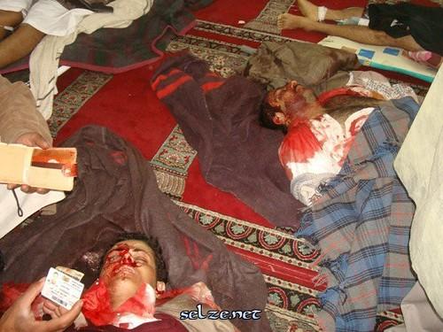 الى من لدية ضمير في اليمن ... هناك مأساة حقيقه في جامعه صنعاء .. والاعلام يضللكم ... اتقوا الله 5537864677_76b6fa332b