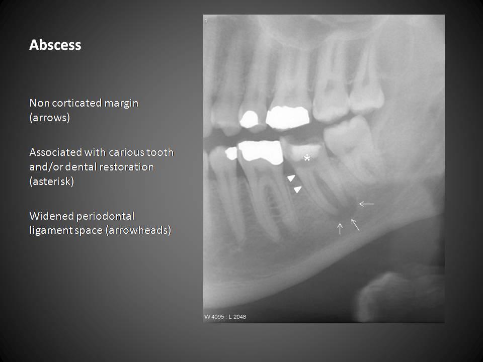 Rvision on Oral Pthology Slides A1198_9