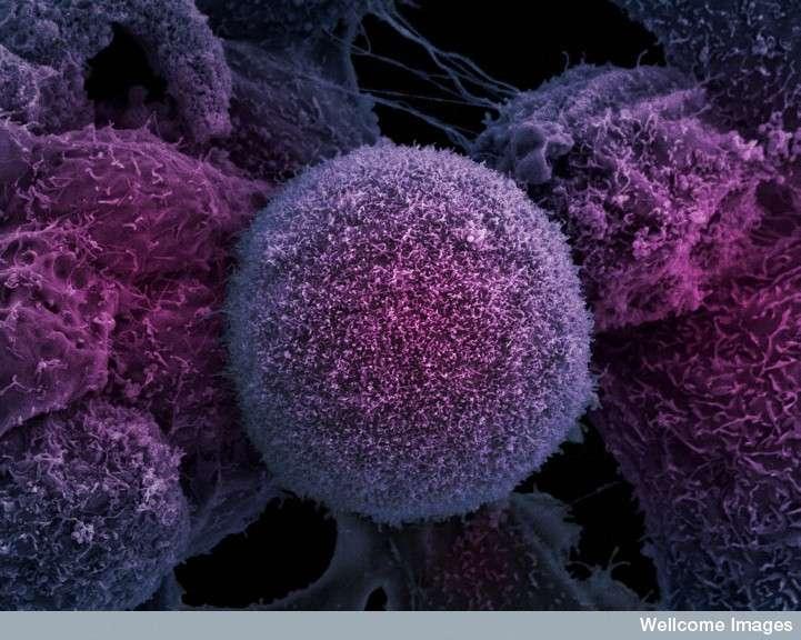 Un traitement qui guérit le cancer en 2 heures ? 2e4d7278ad_38963_cellule-cancer-prostate-anne-weston-wellcome-images-cc-nc-nd-20