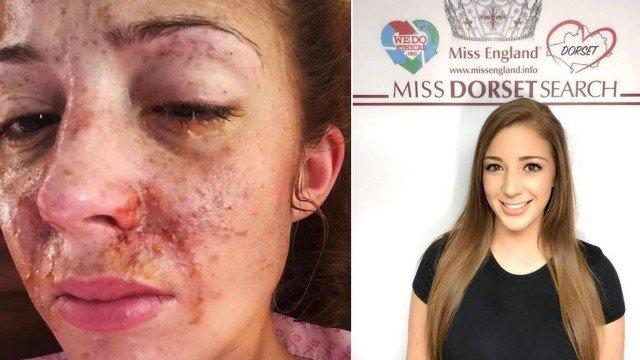 Rociada con ácido se convierte en finalista de concurso de belleza  Mtou3obu