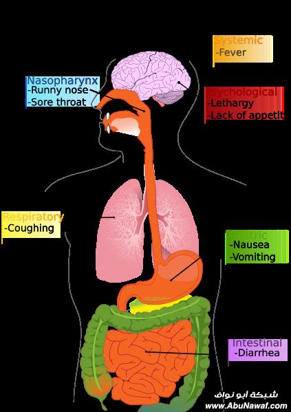 المثير فى انفلونزا الخنا زير 423px-PD_Diagram_of_swine_flu_symptoms_EN