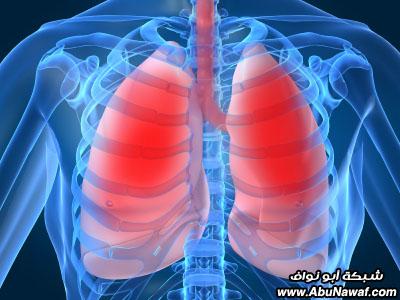 صور : أكثر 10 أمراض بالعالم فتكاً بالبشر COPD