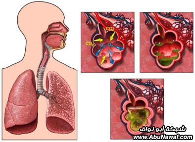 صور : أكثر 10 أمراض بالعالم فتكاً بالبشر Lri