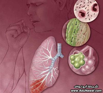 صور : أكثر 10 أمراض بالعالم فتكاً بالبشر Tb