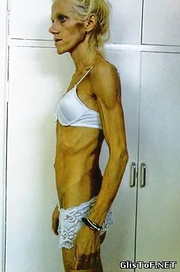 Анорексия - это полный или частичный отказ от приёма пищи (еды). Для вас 20 фото анорексии, это просто жесть! 01428230