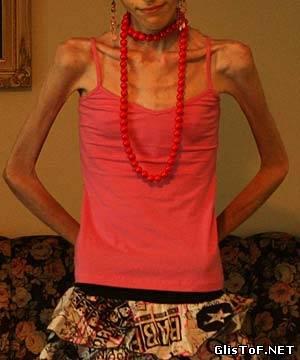 Анорексия - это полный или частичный отказ от приёма пищи (еды). Для вас 20 фото анорексии, это просто жесть! 21106238