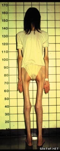 Анорексия - это полный или частичный отказ от приёма пищи (еды). Для вас 20 фото анорексии, это просто жесть! 29880633