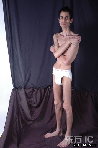 Анорексия - это полный или частичный отказ от приёма пищи (еды). Для вас 20 фото анорексии, это просто жесть! 39363390