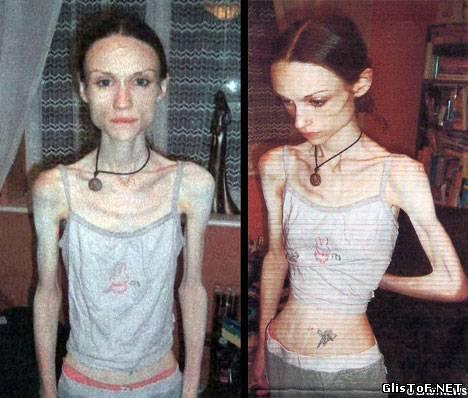 Анорексия - это полный или частичный отказ от приёма пищи (еды). Для вас 20 фото анорексии, это просто жесть! 44943011