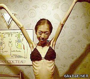 Анорексия - это полный или частичный отказ от приёма пищи (еды). Для вас 20 фото анорексии, это просто жесть! 58645603
