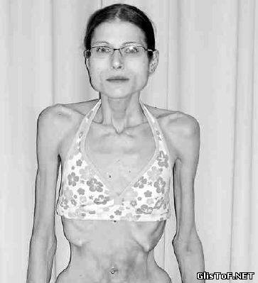 Анорексия - это полный или частичный отказ от приёма пищи (еды). Для вас 20 фото анорексии, это просто жесть! 97664021