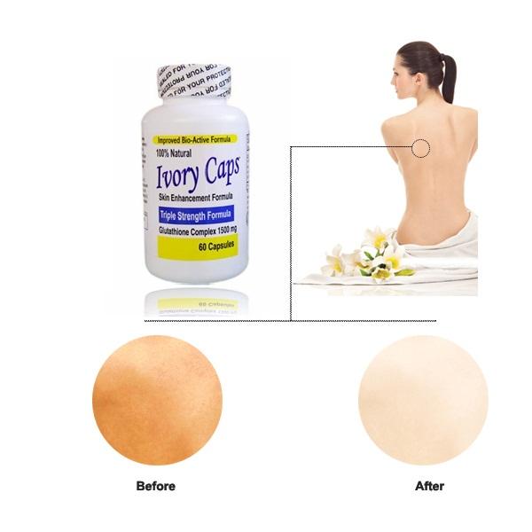 Sản phẩm cần bán: Ivory Caps viên uống Trắng Da Trị Nám Tàn Nhang Thuoc-trang-da-tot-nhat-Ivory-Caps-Glutathione-Complex-1500mg%282%29
