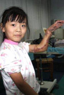 Surgeons Save Girl's Hand by Grafting It Onto Her Leg Article-1330947-0C21C788000005DC-205_224x335