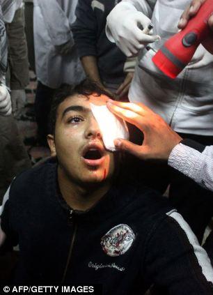 بالصور // The events of Tahrir Square on 19.20, 21, 22.23, 24 November أحداث ميدان التحرير يوم  19، 20 ، 21 ، 22 ، 23 ،24نوفمبر Article-2063825-0EE09B8C00000578-422_306x423