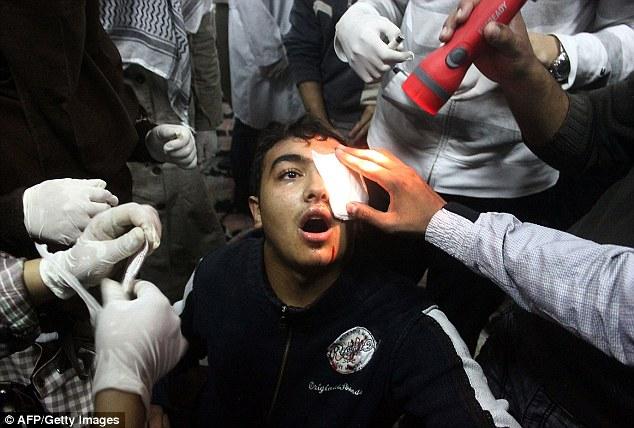 بالصور // Egypt's Liberation high eye injuries  مصر التحرير ارتفاع اصابات العين برصاص الشرطة Article-2066537-0EE09B8C00000578-734_634x428
