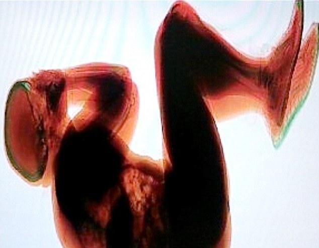 [Internacional]Homem dorme em esteira de malas e é encontrado em raio-X de aeroporto  Article-2186086-1476CAF4000005DC-238_634x493