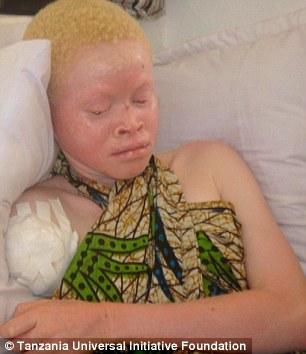 من هم الالبينوalbino؟واين يعيشون ؟ قصة «الألبينو» بالصور 24C75A7900000578-2922243-Many_albinos_survive_the_attacks_but_are_left_without_arms_or_le-a-4_1422286102993