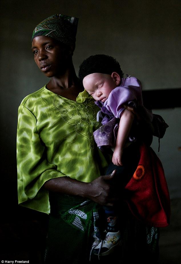 من هم الالبينوalbino؟واين يعيشون ؟ قصة «الألبينو» بالصور 24F51E7A00000578-2922243-Tanzania_s_albino_population_is_being_hunted_down_by_people_who_-m-1_1422286013831