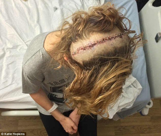 Katie Hopkins in DM: The McCanns should accept 'their part of the blame' and didn't deserve 11 million. - Page 4 3197499A00000578-3465742-Damage_The_scar_left_in_Katie_Hopkins_skull_after_she_underwent_-m-3_1456511601086