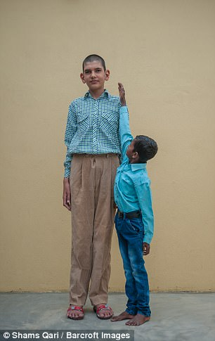 La historia del niño más alto de la India, Karan Singh 41691A4A00000578-4602518-Pictured_Karan_s_friend_tries_his_hardest_to_reach_his_head-a-2_1497459929585
