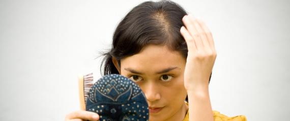 تساقط الشعر ليس دائماً وراثياً.. وهذه الأطعمة تحميك من الصلع N-HAIR-LOSS-large570