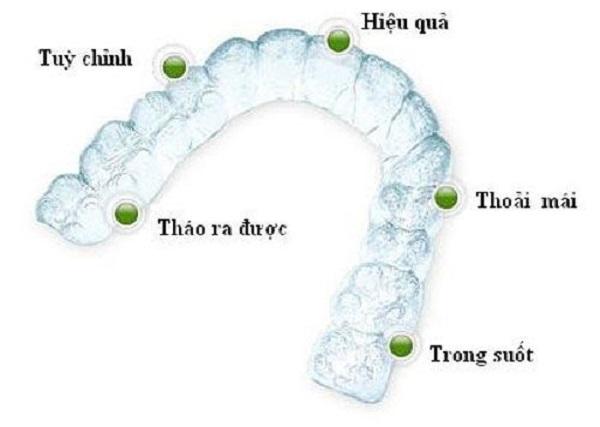 Niềng răng trong suốt là gì? Chuyên gia tư vấn 127