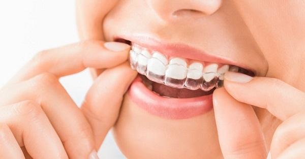 Niềng răng trong suốt tại nhà có tốt không? 132