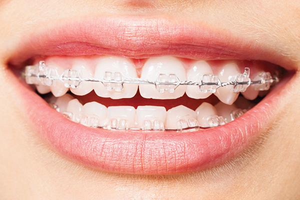 Nên làm răng sứ hay niềng răng thì tốt hơn? 204
