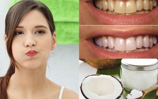 Cách tẩy trắng răng bằng dầu dừa tại nhà 300