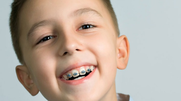 Thời gian làm niềng răng mất bao lâu? 180