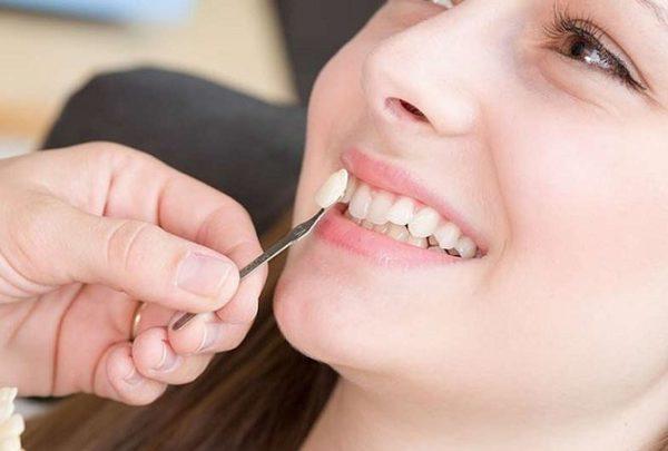 Nên làm răng sứ hay niềng răng thì tốt hơn? 74