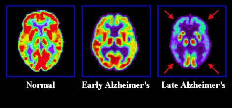 Jeûner 1 à 2 fois par semaine contre Alzheimer et Parkinson Alzheimers-topper