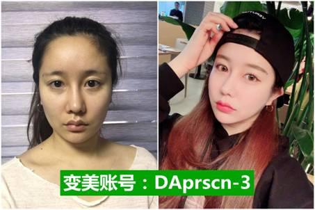 韩国DA整形医院的轮廓手术让我找回了年轻时候的自己 8f3f547be8407ca7