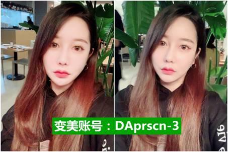 韩国DA整形医院的轮廓手术让我找回了年轻时候的自己 C512f0532eddbf26