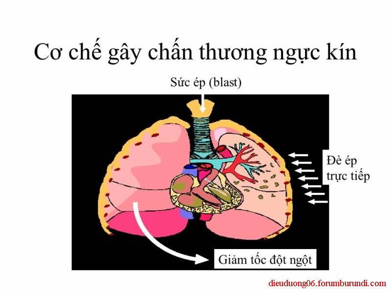 Chấn thương ngực nặng-Đa chấn thương Slide17